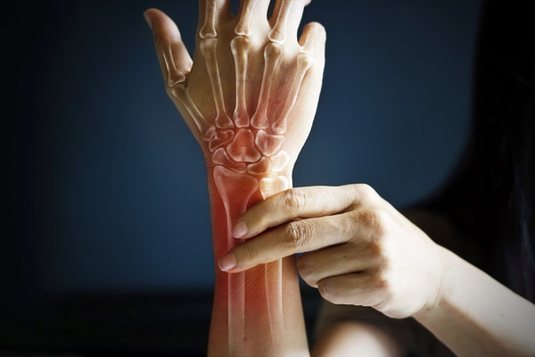 Close up of woman holding her wrist with bones superimposed on it